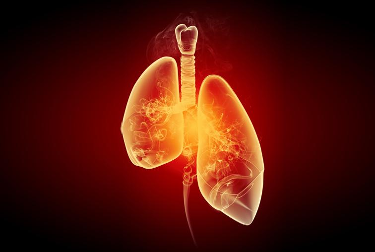 1 pulmon